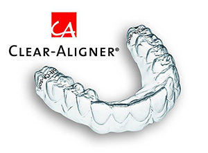 clear-aligner-small